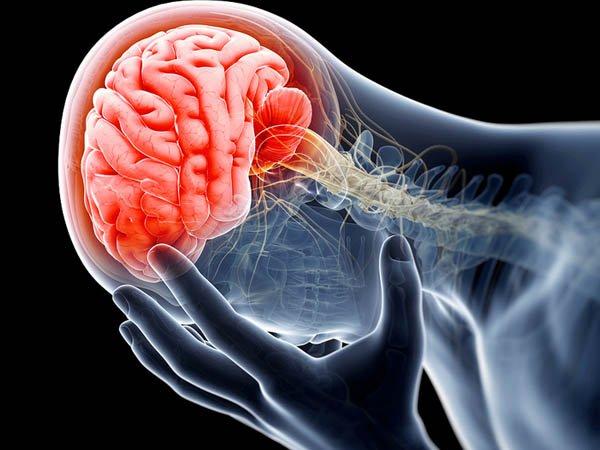 Chấn thương sọ não