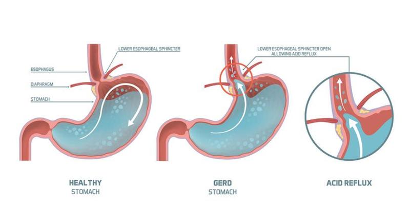 Bệnh trào ngược dạ dày thực quản (GERD)