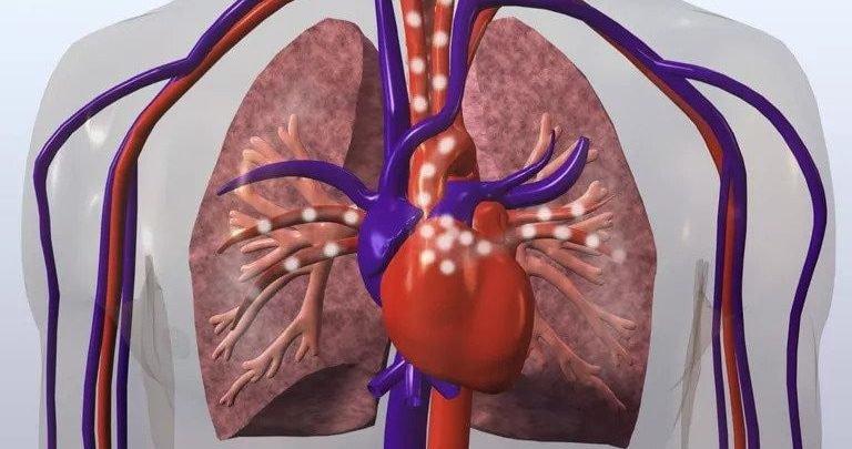 Thay van tim động mạch phổi
