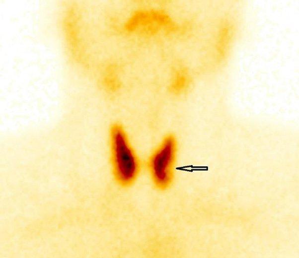 Hình ảnh bướu nhân lạnh thùy trái tuyến giáp