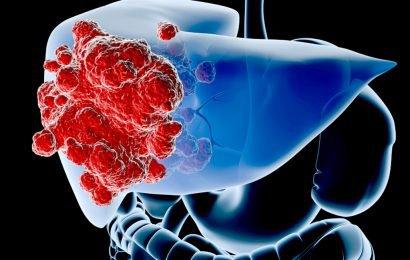 Sinh thiết khối u gan: Những điều cần biết