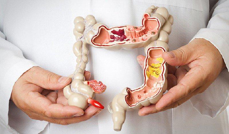 Siêu âm qua nội soi tầm soát ung thư đường tiêu hóa