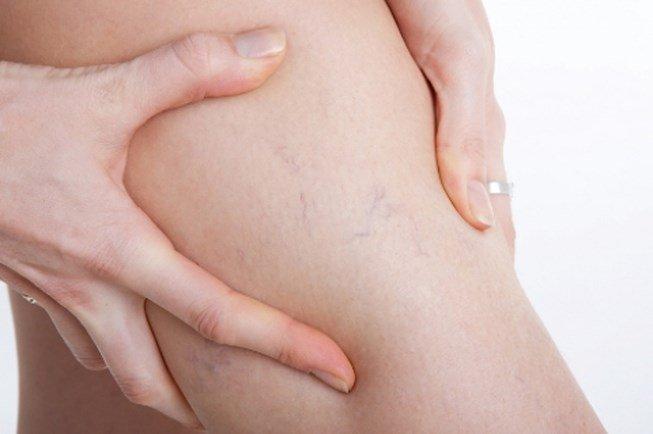 Các phương pháp điều trị suy giãn tĩnh mạch chi dưới mãn tính