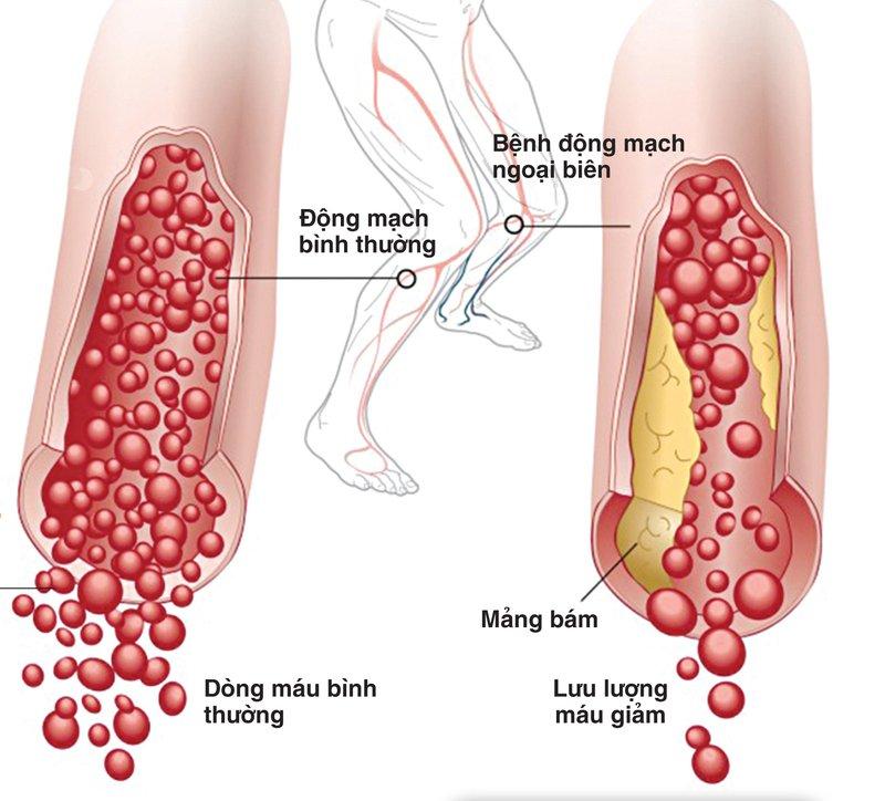 Tắc động mạch