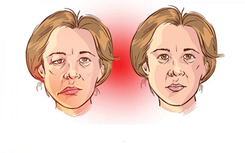 Cơ chế hình thành bệnh nhược cơ (myasthenia gravis)