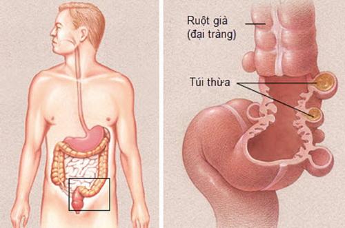 Bệnh túi thừa đại tràng điều trị thế nào?