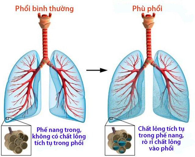 Hình ảnh phù phổi