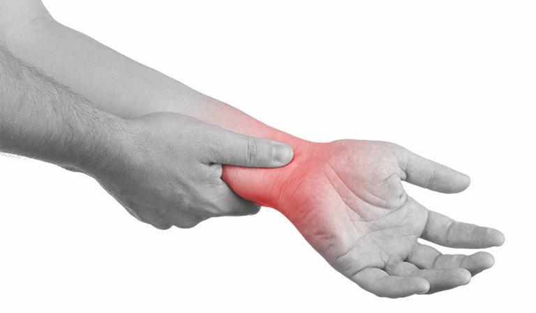 Hội chứng đau cổ và tay