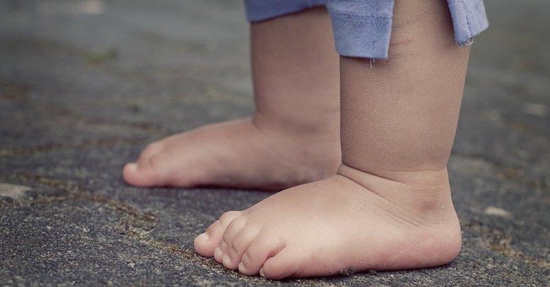 Hội chứng bàn chân bẹt