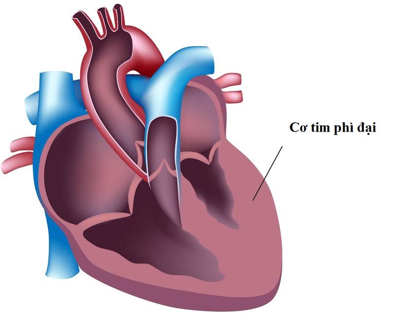 Cơ tim phì đại