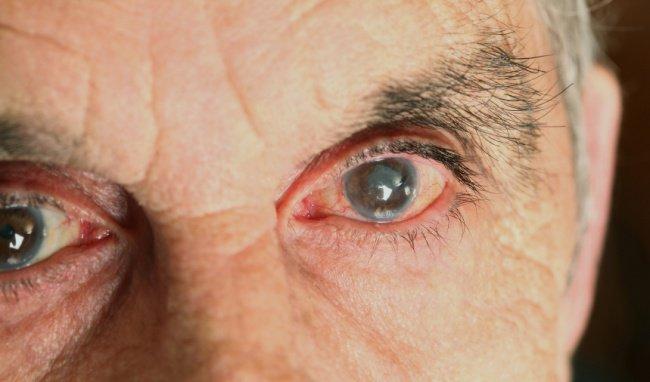 Nguyên nhân và triệu chứng bệnh cườm nước
