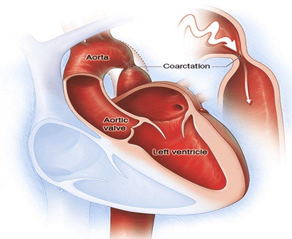 Tăng huyết áp do hẹp eo động mạch chủ