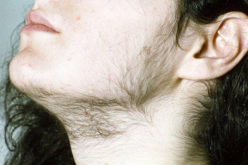 Chứng rậm lông ở phụ nữ