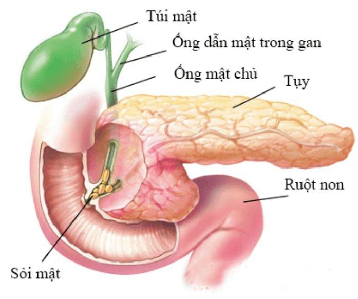 Các phương pháp chẩn đoán và điều trị sỏi ống mật chủ
