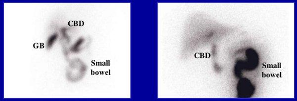 Hình ảnh xạ hình gan mật bình thường