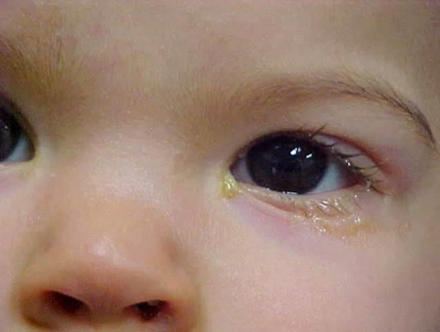 Dấu hiệu tắc lệ đạo nổi bật nhất là tình trạng chảy nước mắt nhiều