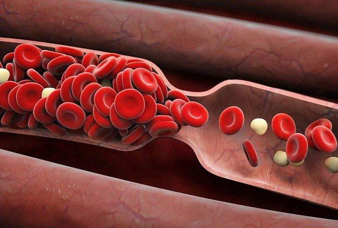 Sự hình thành và cách ngăn ngừa cục máu đông ở bệnh nhân ung thư