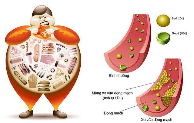 Cholesterol ở trẻ em: Những điều cần biết