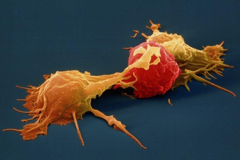 Tế bào tiêu diệt tự nhiên