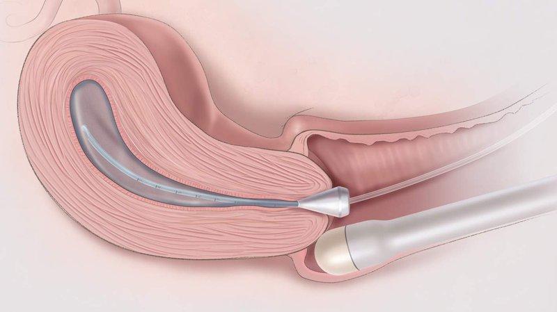 Những điều cần biết về sinh thiết cổ tử cung