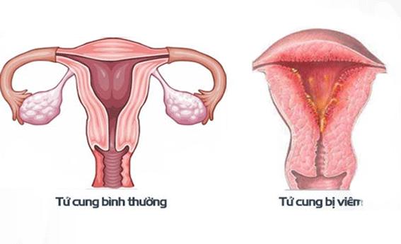 Viêm niêm mạc tử cung rất thường gặp sau sinh con