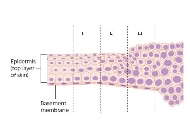 Các giai đoạn phát triển của ung thư âm hộ