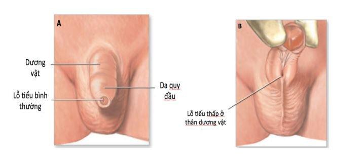 Lỗ tiểu bình thường (A), lỗ tiểu thấp (B)