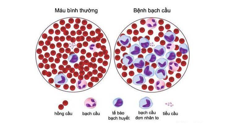 Bệnh bạch cầu mãn tính dòng lympho