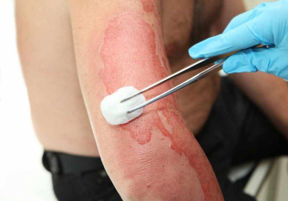 Thay băng và rửa vết thương cho bệnh nhân bị bỏng