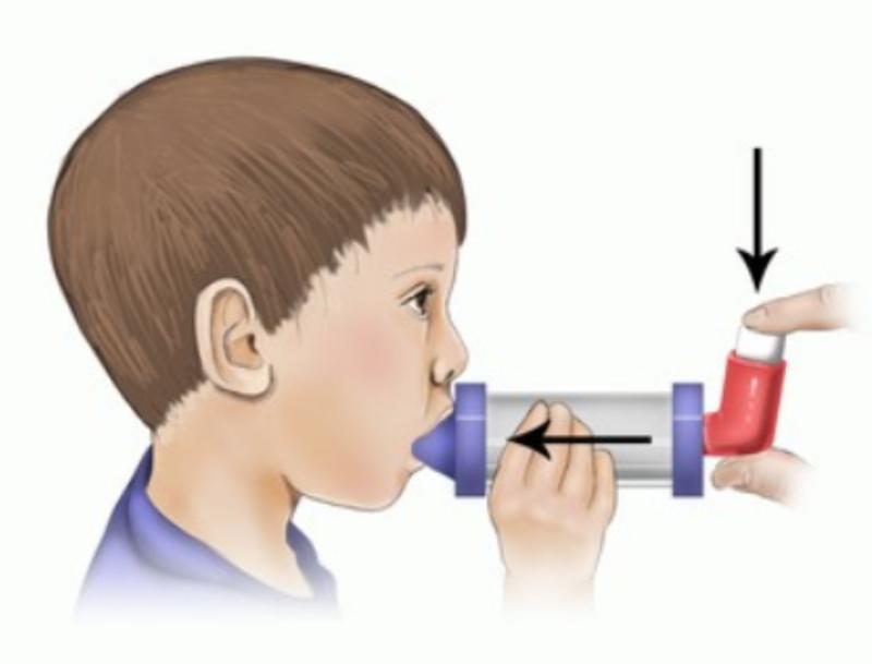 Hướng dẫn sử dụng bình xịt định liều ở trẻ