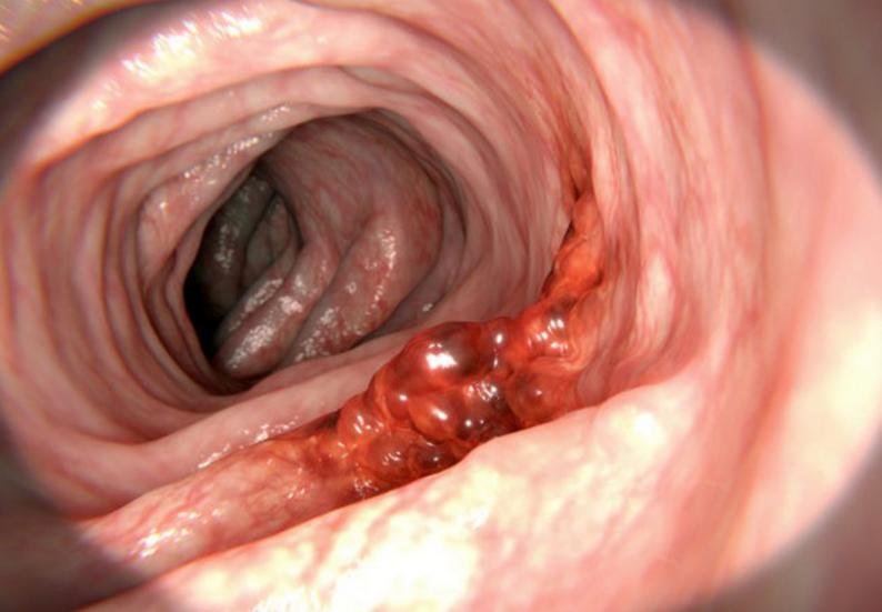 Ung thư đại trực tràng  2