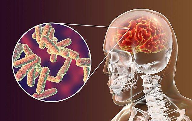 Các chứng viêm não, viêm màng não