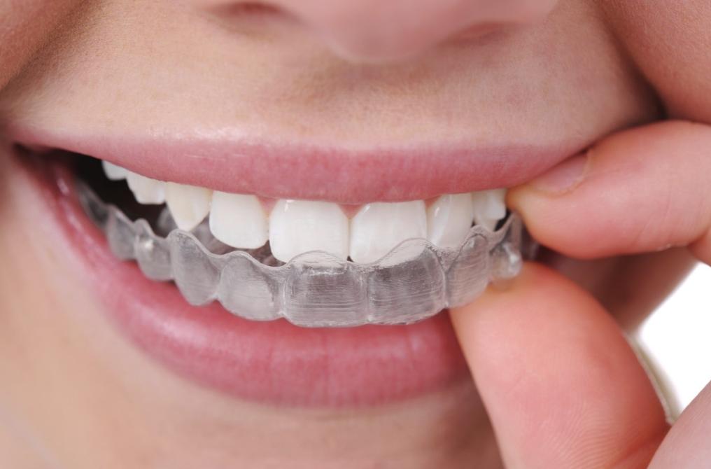 Đeo máng tẩy trắng răng tại nhà