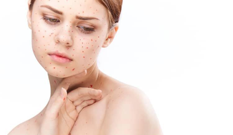 Nhận biết bệnh rubella ở người lớn
