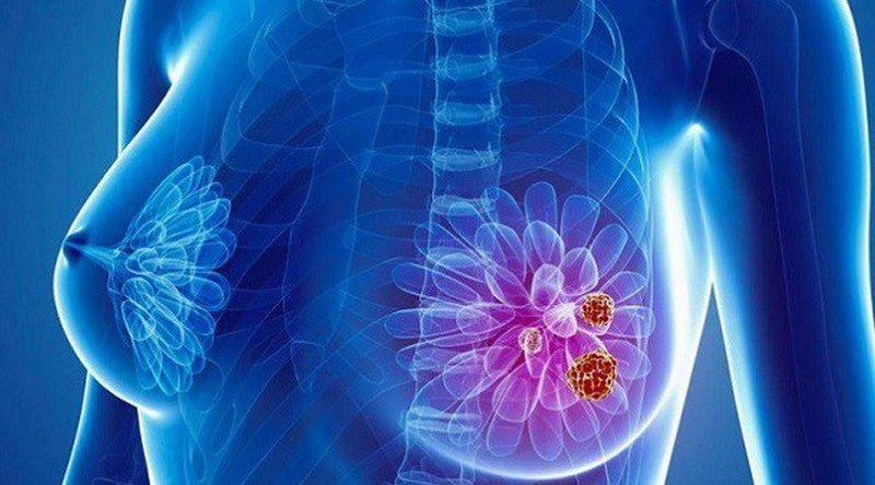 Triệu chứng ung thư vú tái phát