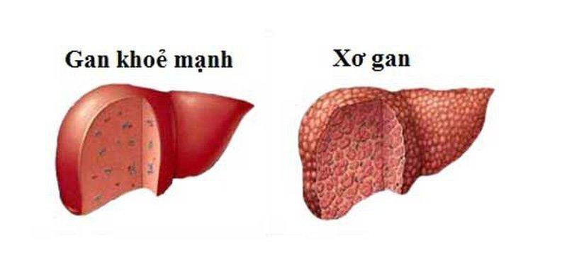 Viêm gan B mãn tính có thể gây xơ gan