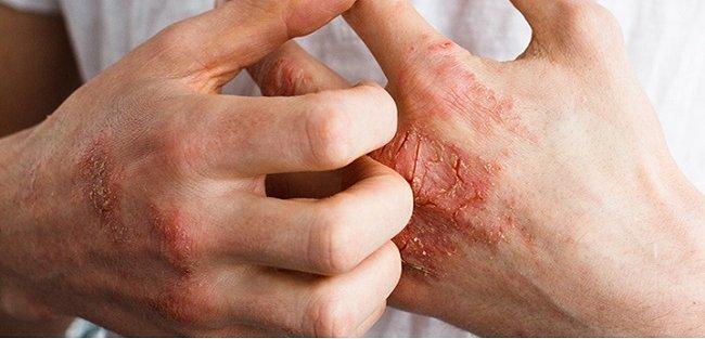 Điều trị sớm viêm khớp vảy nến để tránh tàn phế