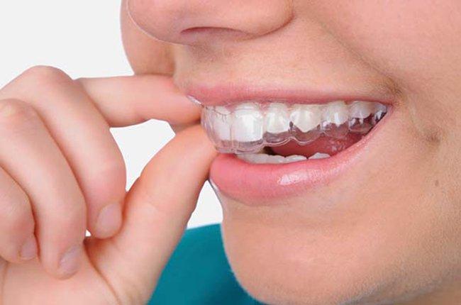 Máng chống nghiến răng cản trở sự tiếp xúc của hàm trên và hàm dưới