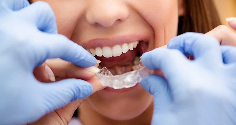 Vai trò của máng chống nghiến răng