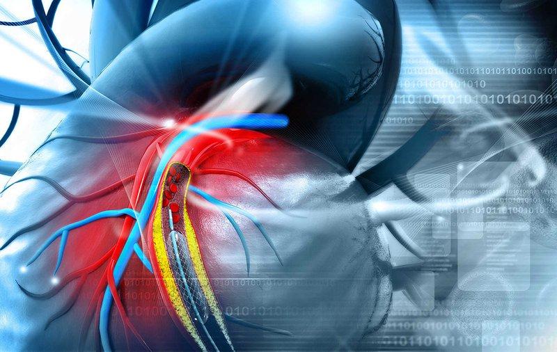 Qúa trình diễn ra vôi hóa mạch vành