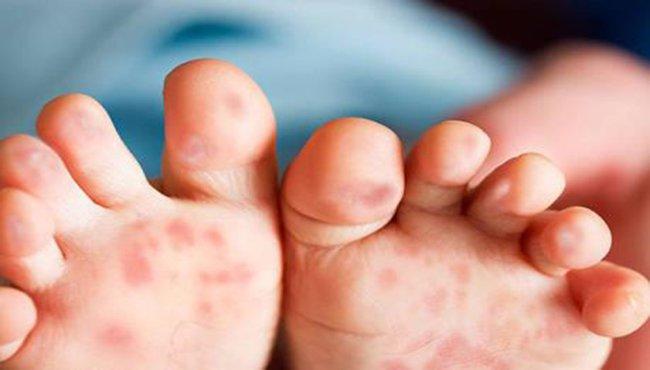 Phân biệt tay chân miệng với các bệnh khác