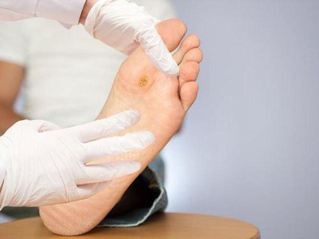 Cách chăm sóc bàn chân người bệnh tiểu đường