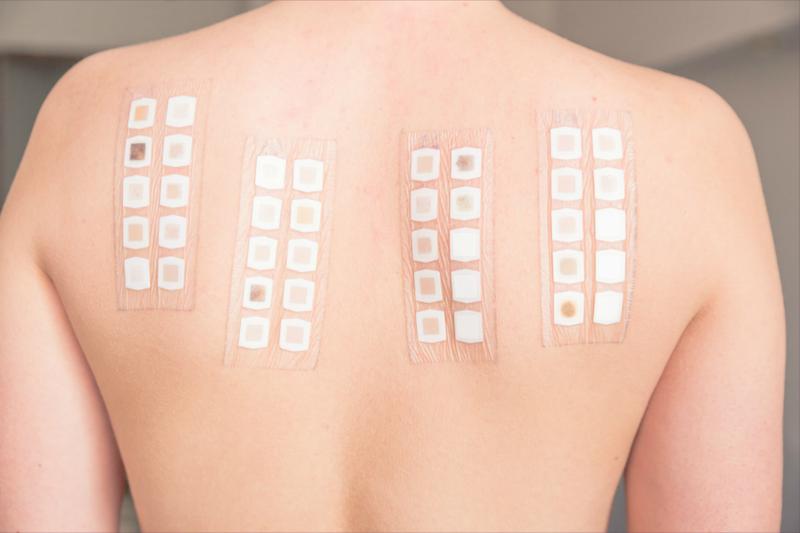 Kiểm tra dị ứng áp da Patch Test