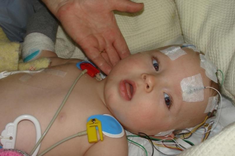 Xuất huyết não ở trẻ