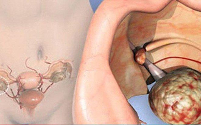 Phẫu thuật ung thư buồng trứng