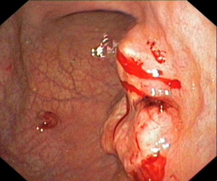 Hình ảnh ung thư dạ dày trên nội soi
