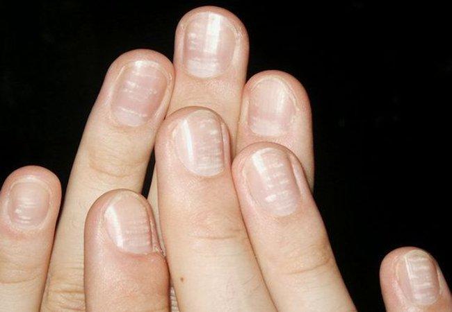 Vảy nến móng tay