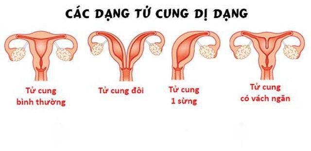 Dị dạng tử cung