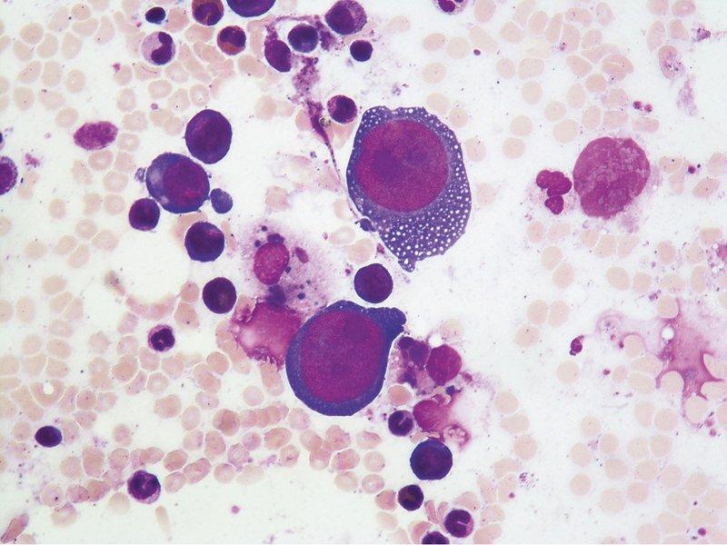 Parvovirus B19