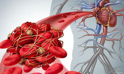 Huyết khối động mạch vành
